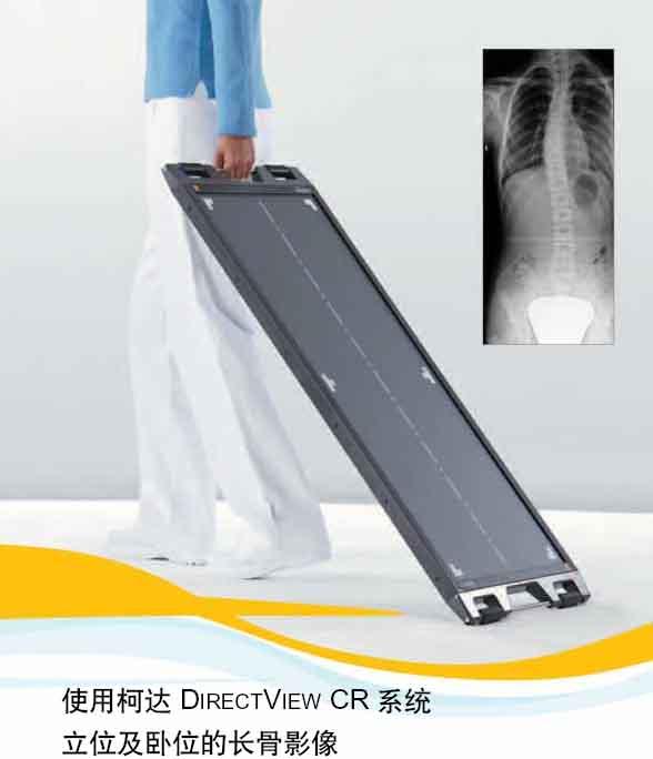 柯达Direct View CR系统立位及卧位长骨影像